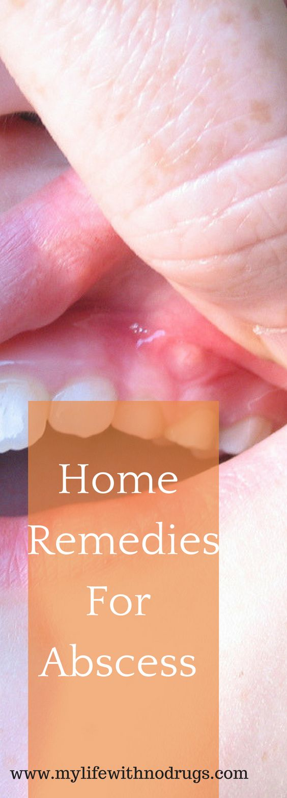 #HomeRemedies For #Abscess with #herbs are effective and safe alternative, without the side effects of antibiotics.