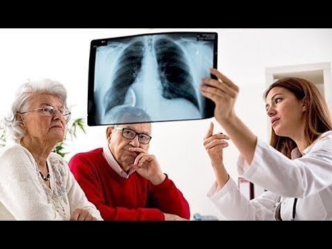 Lung cancer - Signs, treatments, causes and types of lung cancer. - WATCH VIDEO HERE -> http://bestcancer.solutions/lung-cancer-signs-treatments-causes-and-types-of-lung-cancer    *** signs of lung cancer ***   Lung cancer – Signs, treatments, causes and types of lung cancer. Lung Cancer: The Big Picture: Lung cancer is the top cause of cancer deaths in both men and women. But this wasn't always the case.  Before the widespread use of mechanical cigarette...