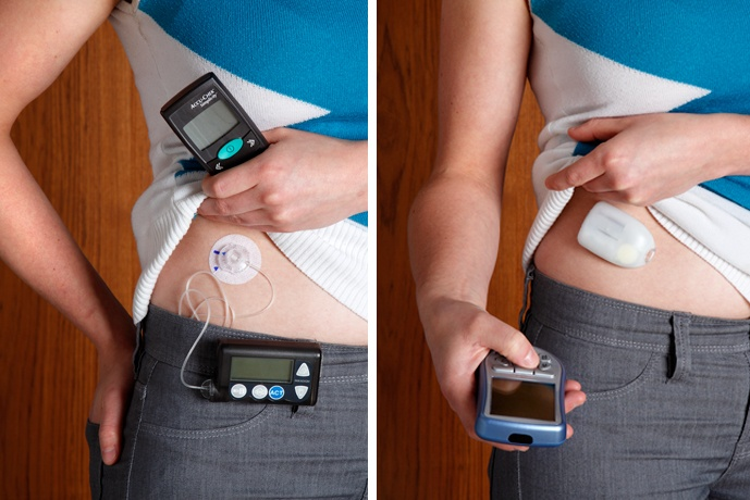 omnipod this is how my kody rolls  check this out  wireless pump