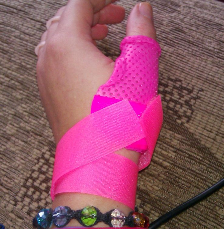 Hot pink thermoplastic thumb spica to immobilise the thumb joints . MCP