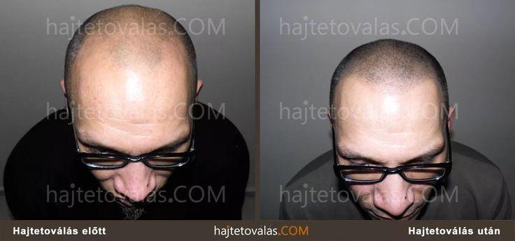 HIMG Klinika Hajtetoválás hajbeültetés