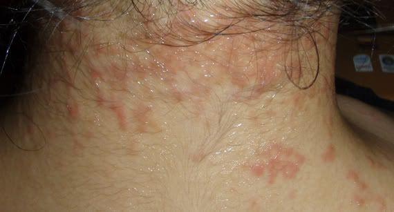 Eczema rash on neck