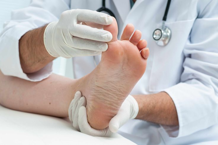 Athlete's foot (tinea pedis) is a fungal infection that usually begins between the toes. These tips can help you avoid athlete's foot or ease the symptoms if infection occurs.