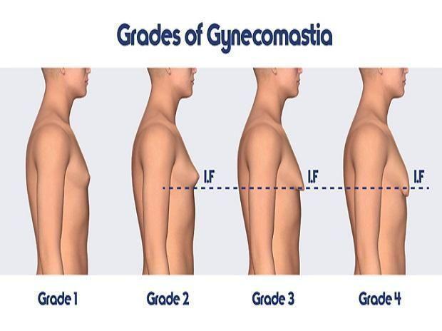 #Breast #Gynecomastia #Male #Reduction #breastredu…