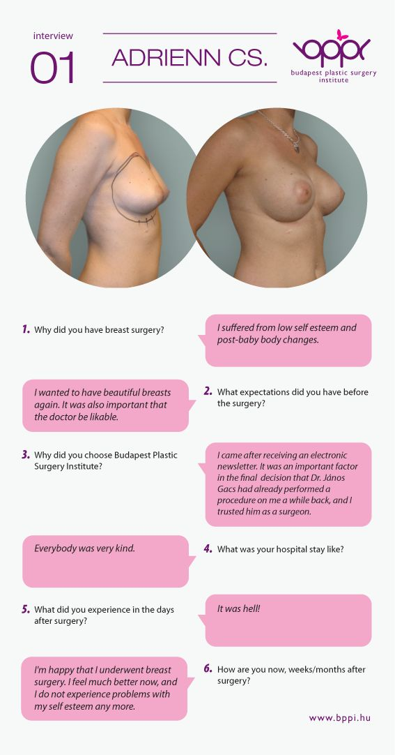 Breast implant sizes in cc