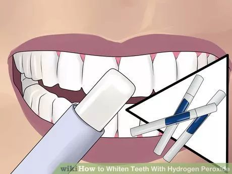 Image titled Whiten Teeth With Hydrogen Peroxide Step 4