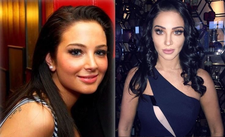 Tulisa Face Plastic Surgery Before And After Pics