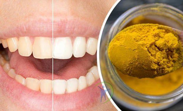 como limpiar los dientes con aceite de coco