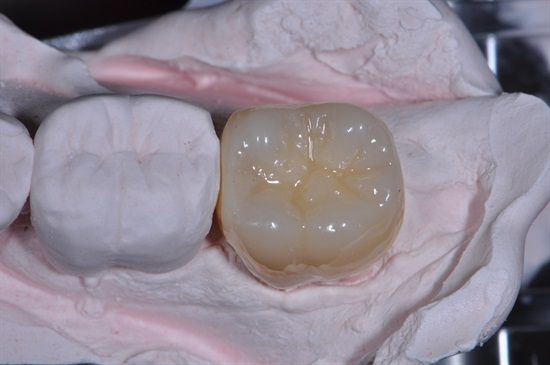 Polished... Dr. Michael J. Melkers shows how he makes his crown temporaries at Dentaltown Message Board Restorative Dentistry http://www.dentaltown.com/MessageBoard/thread.aspx?s=2&f=216&t=240095&pg=1&r=3655471   #Dentaltown #MakingATemporaryCrown #CrownAndBridgeTemporaries #LabMadeTemporaries #Biotemps #LabMadeTemps #ShellTemporaries #Radica #GCOptiglaze #Dentist #Dental #DentalAssistant #Dentistry #Prosthodontist #Prosthodontics