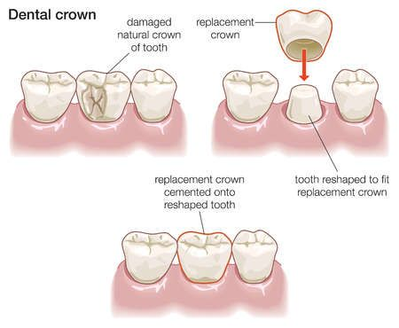 Dental Crowns can improve a tooth's shape, size, strength, and its appearance! http://www.healthydentalexpressions.com