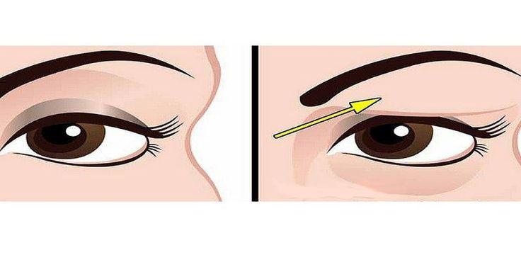 Jak přírodně vyléčit zavěšená oční víčka: Výsledky jsou úžasné!