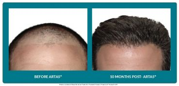 Benefits of ARTAS® For Men and Women- This treatment does not require any stitches or linear scars, it is virtually painless. The robotic system's advanced algorithms can identify & precisely select the very best hairs for harvesting, and then deliver high quality and robust hair grafts, giving you the highest chance of attractive and permanent future hair growth. Stayed tuned for LIVE VIDEO and call Landon Plastic Surgery to book your appointment today: (727) 777-6771