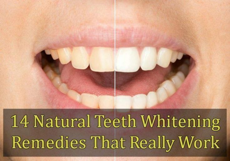14 Natural Teeth Whitening Remedies That Really Wo…