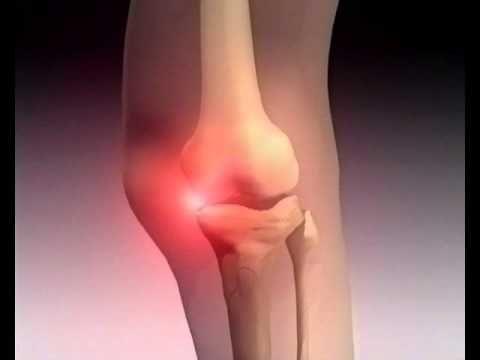 artrose van de knie - YouTube