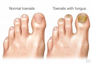 What causes toenail fungus, and what can be done to treat it? Is it contagious?