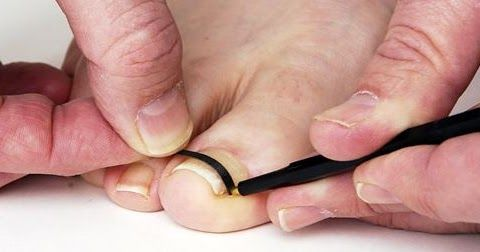 Toenail Removal: Why you Need it and How to Avoid it?