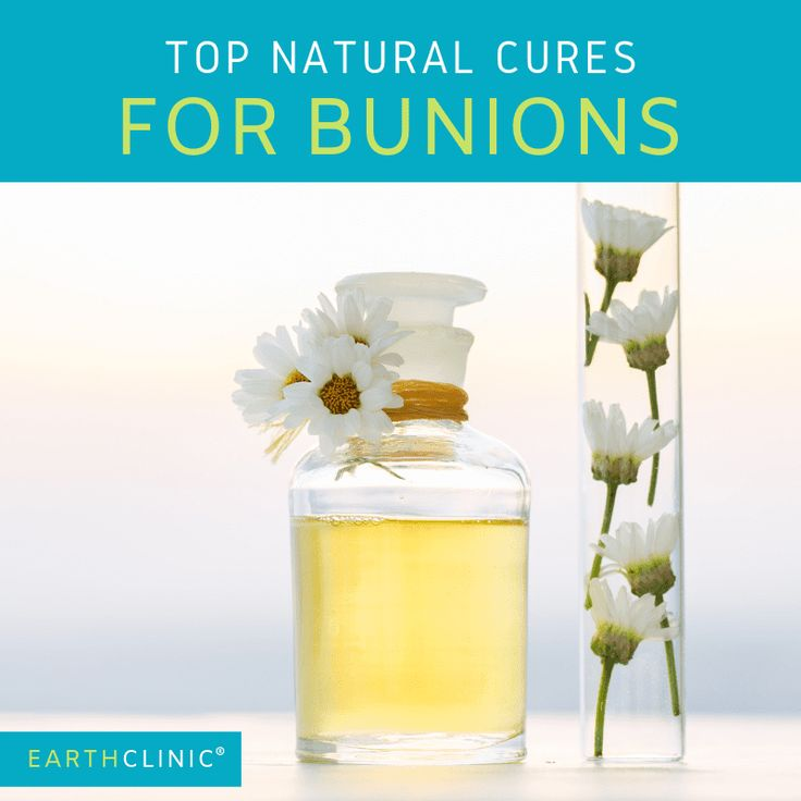 Natural cures for bunions the cure natural cures bunion