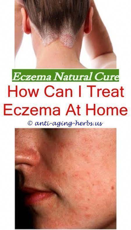 Can benadryl help eczema.Gold bond anti itch cream for eczema.Home remedies for …