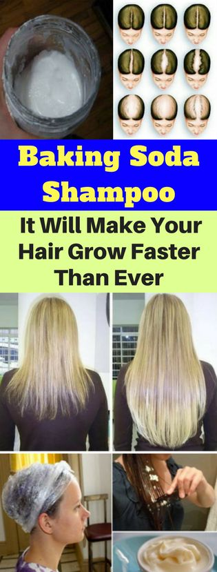 Baking Soda Shampoo: It Will Make Your Hair Develop Sooner Than Ever