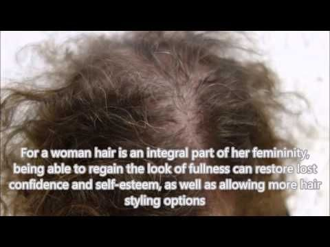 Female Hair Loss and Scalp Pigmentation - Vinci Hair Clinic -  How To Stop Hair Loss And Regrow It The Natural Way! CLICK HERE! #hair #hairloss #hairlosswomen #hairtreatment Free, no obligation advice – For a woman hair is an integral part of her femininity, being able to regain the look of fullness with micro scalp pigmentation can restore lost... - #HairLoss