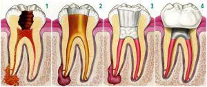 Quando um dente precisa ser tratado por um endodontista é porque tem a raiz infectada bem como os tecidos vizinhos, o que resulta em dor, inchaço, pus e febre.  A falta de tratamento resultará na perda dentária.