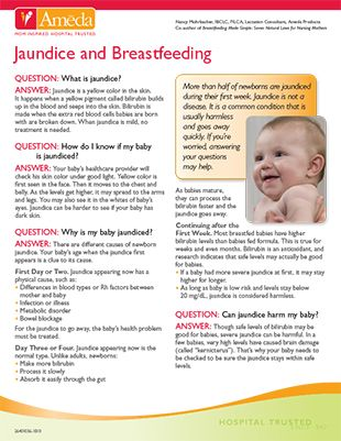 Jaundice and breastfeeding