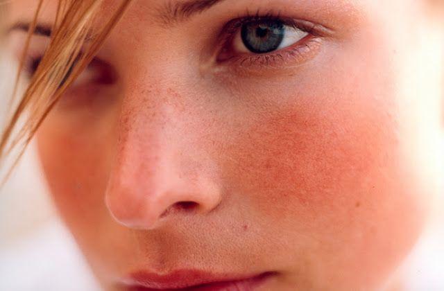 Tag:antibiotics for rosacea symptoms 7 weeks,homemade rosacea treatments las vegas,buy revitol rosacea cream uk quote,how to cure acne rosacea naturally ...