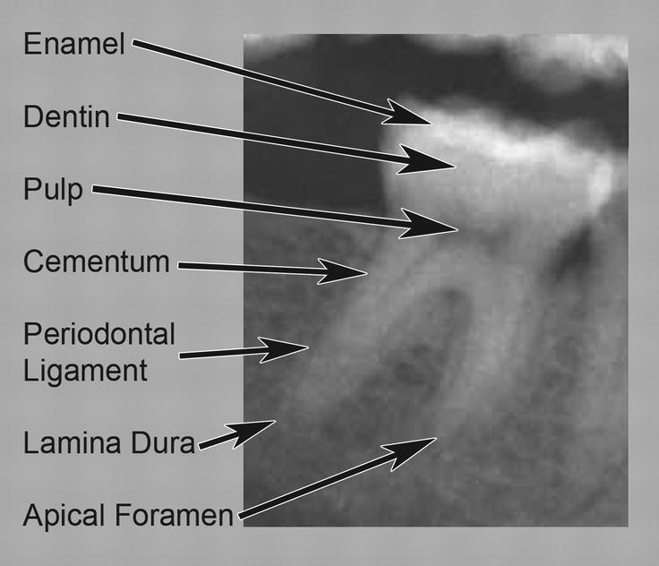 Radiographic anatomy definition
