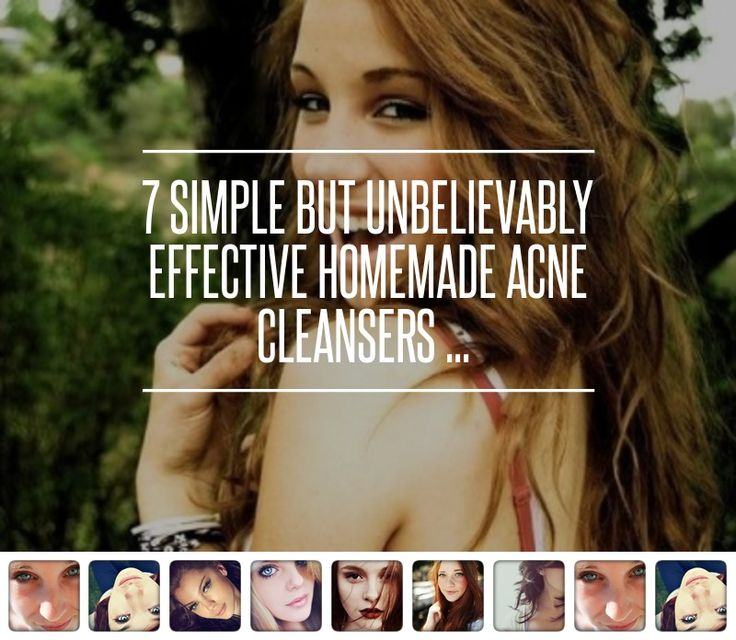 7. Apple Cider Vinegar - 7 Simple but Unbelievably Effective Homemade Acne Cleansers ... → Beauty