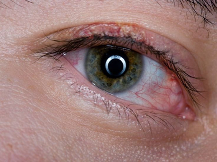 Blepharitis is the most prevalent ocular occurrence in psoriasis 3