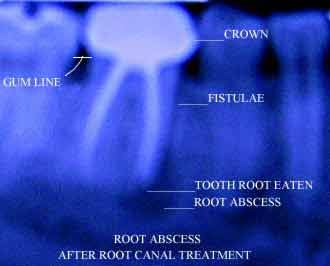 Oral Surgery Post Care: What are the warning signs of ...  |Abscessed Tooth Complications Signs