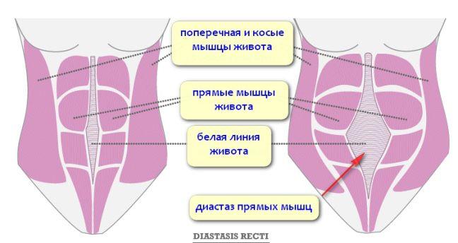 Диастаз – это расхождение прямых мышц живота различной степени. При этом прямые мышцы живота как бы разъезжаются и отдаляются друг от друга на различное расстояние. Зачастую диастаз обнаруживается …