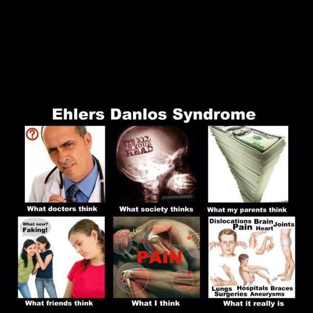 Pin by Amanda Bardwell on EDS awareness Ehlers danlos