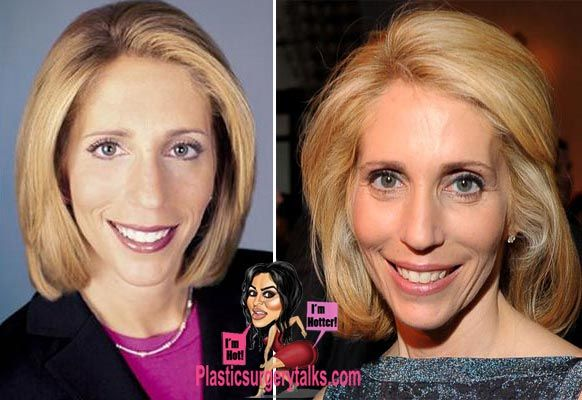 Dana Bash Plastic Surgery Before & After - http://plasticsurgerytalks.com/dana-bash-plastic-surgery/