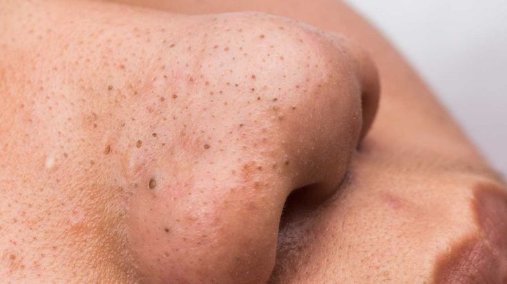 Blackheads: Causes, Symptoms, and Treatments