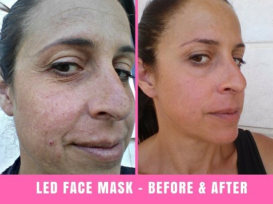 We Tried The Project E Beauty Led Face Mask For 30 Days Results Are In Face Mask For Redness