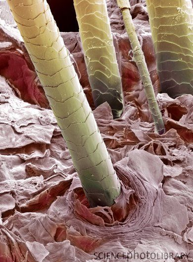 Human hair, colored SEM. Hair shafts growing from the surface of human skin.