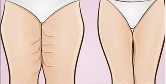 Se você tem excesso de gordura da barriga, isso pode ser um sinal de que seu organismo está lutando contra diabetes, hipertensão e/ou algum tipo de doença cardíaca.