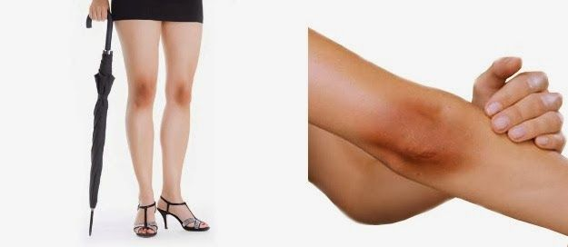 How To Get Rid Of Black Knees And Elbows | Way2medicare