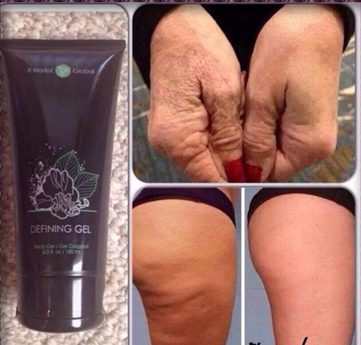 BEFORE and AFTER with our Defining Gel #CelluliteBeforeAndAfter