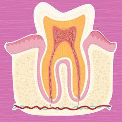 Le traitement de canal dentaire