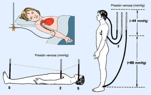 Toma de presión venosa central - Enfermería.me