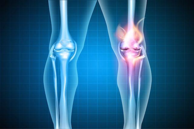 A dor no joelho é um sintoma que pode surgir devido ao desgaste da articulação, ao excesso de peso ou às lesões esportivas que podem acontecer no jogo...
