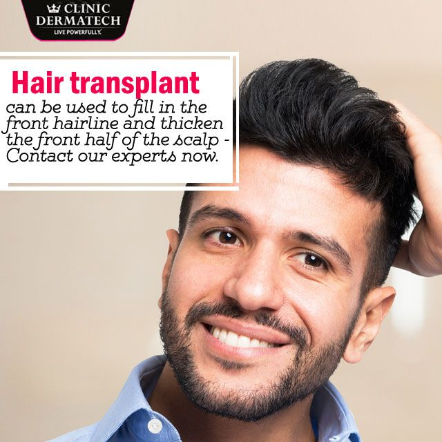 #Hair #Transplant can be used to fill in the front hairline and thicken the front half of the scalp-contact our experts now. #ClinicDermatech #LivePowerfully #10GloriousYears #Beauty #Wellness