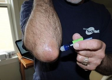 Treating Psoriasis with Essential Oils!  This really works!  via www.BackdoorSurvival.com