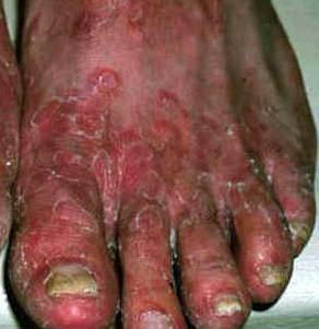 To Care And Heal Our Foot Related Problems Is Equally Important As Healing Other Parts Of Our Body