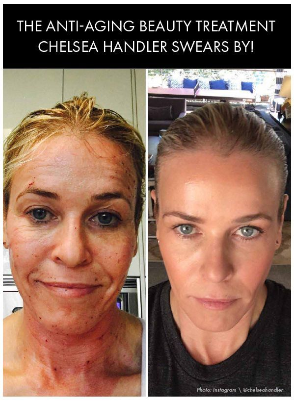 Chelsea Handler is sharing the anti-aging beauty treatment she swears by to get flawless and youthful skin. Womanista.com