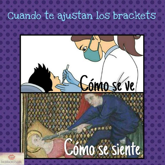 When you visit the orthodontist: How it looks - How it feels  Me duelen los dientes!!!!! #dentist #orthodontist #braces #brackets #brakets #aparato #adultbraces #crossbite #frenillos #fierritos #girlswithbraces #jawsurgery #loveortodoncia #mordidacruzada #metalmouth #openbite #orthodontic #ortodoncia #sonrisa #sonrisademetal #bracesproblems #bracesmile #bracketsmile #crossbite #dientesdelata #smile #braceface