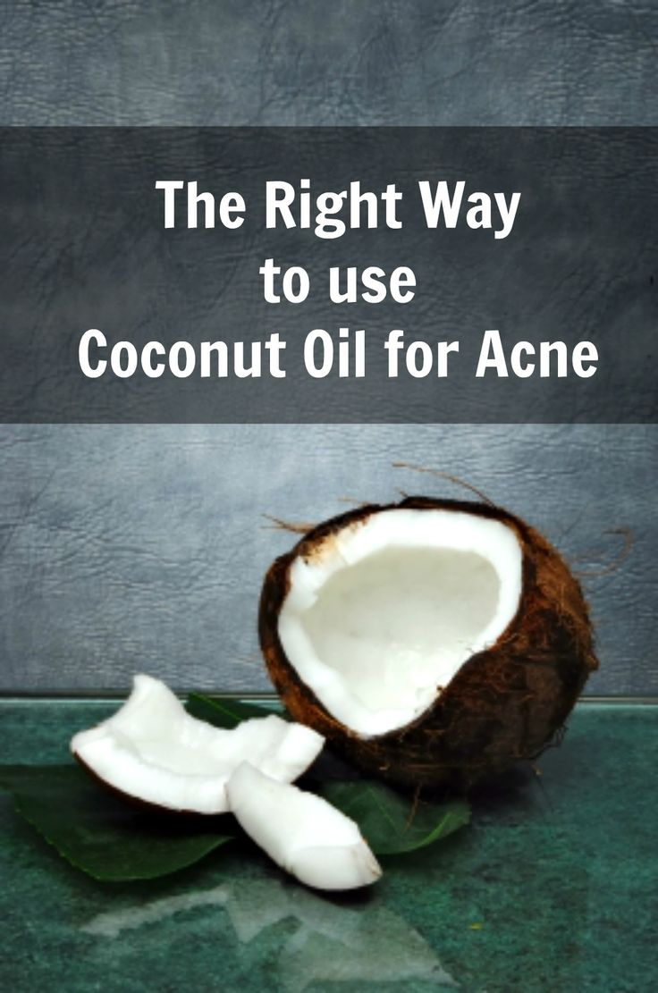 Coconut+Oil+for+Acne+|+Does+it+work?