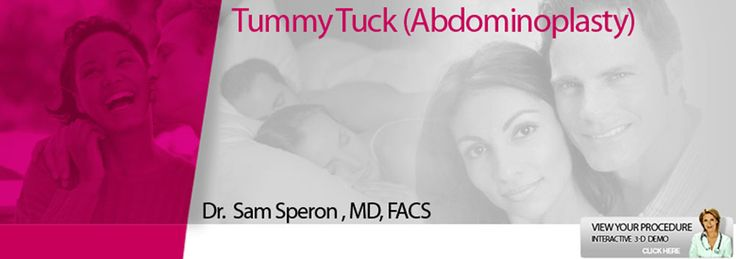 Chicago Tummy Tuck Picture & Panniculectomy - Some Chicago Tummy Tuck Surgery patients who undergo the Chicago Tummy Tuck procedure can have a panniculectomy instead, which is often covered by insurance.